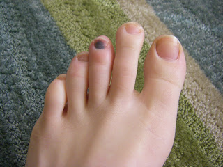 I need my toes!!!